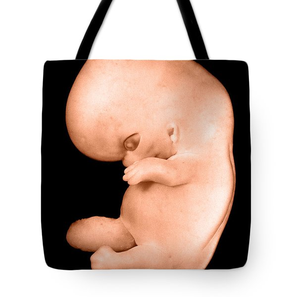 44 Day Old Human Embryo Tote Bag by Omikron