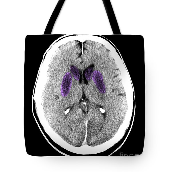 Brain Of A Cardiac Arrest Victim Tote Bag by Medical Body Scans