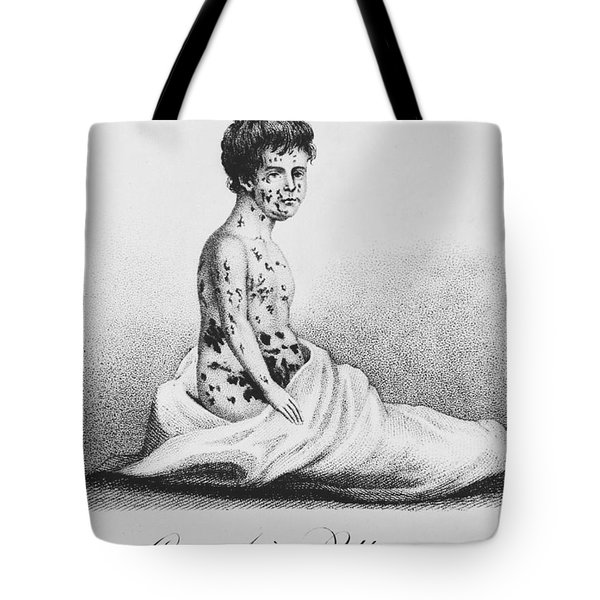 Development Of Smallpox Tote Bag by Science Source