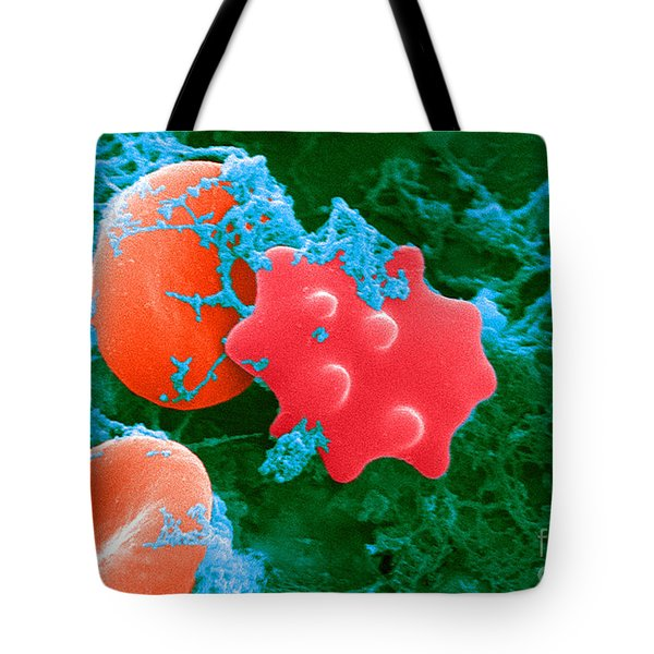 Red Blood Cells And Acanthocyte, Sem Tote Bag by Science Source