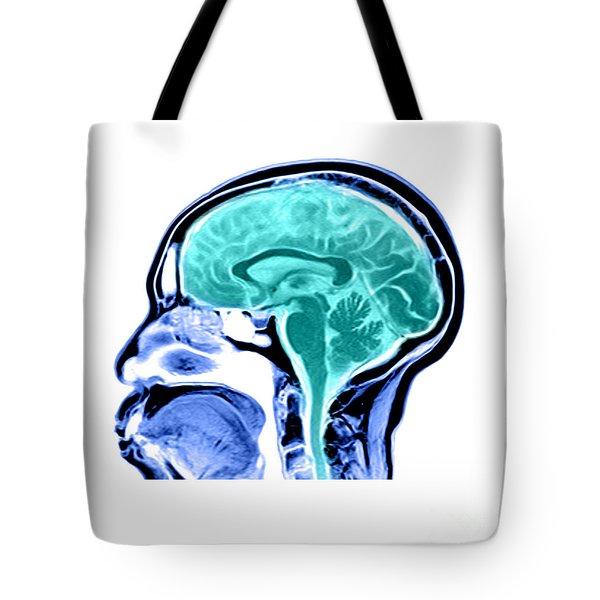 Sagittal View Of An Mri Of The Brain Tote Bag