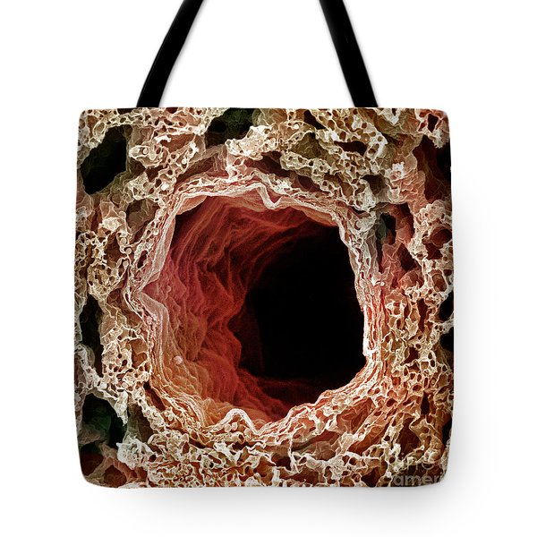 Sem Of Lung Tote Bag by Science Source
