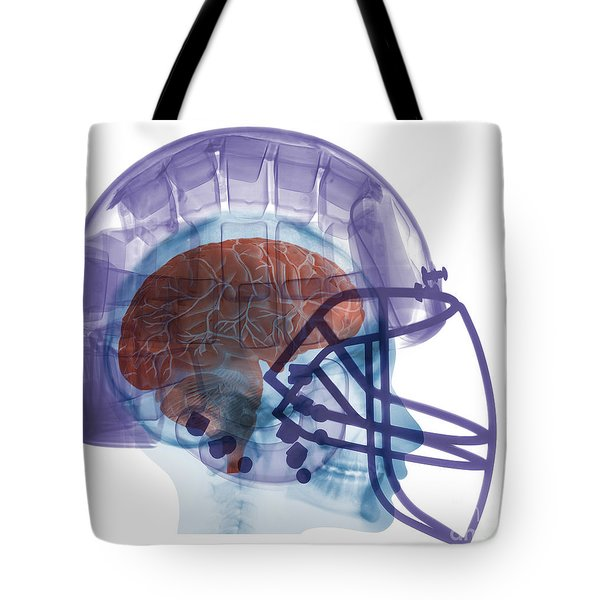 X-ray Of Head In Football Helmet Tote Bag by Ted Kinsman