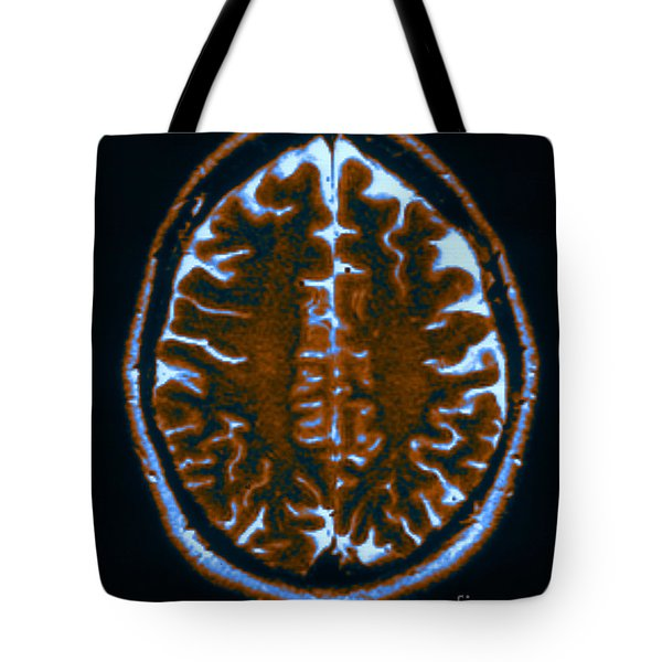 Mri Of Normal Brain Tote Bag