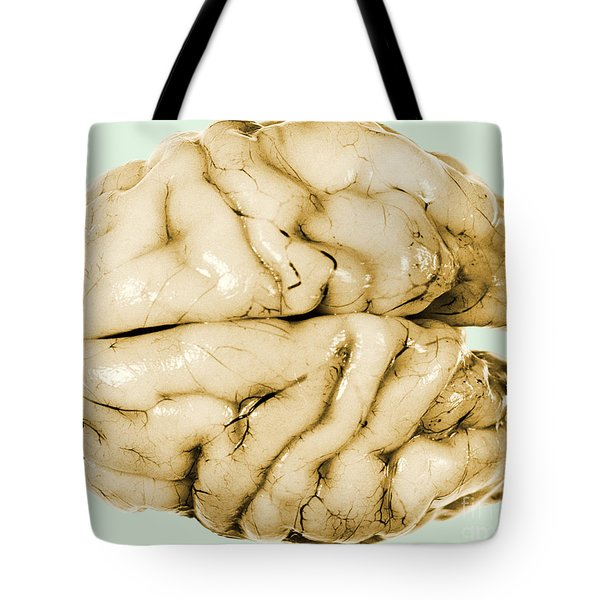 Brain Tote Bag by Science Source