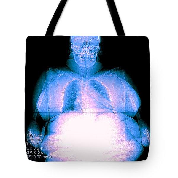 Digital X-ray Of Obesity Tote Bag