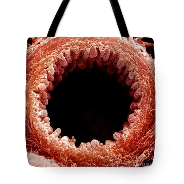 Mouse Bronchiole, Sem Tote Bag by Science Source