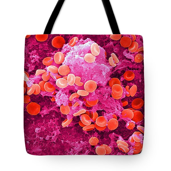 Red Blood Cells, Sem Tote Bag by Science Source