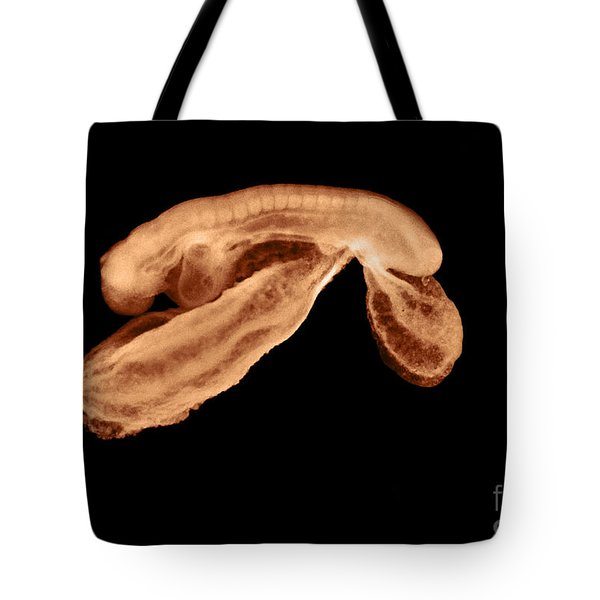 23 Day Old Human Embryo Tote Bag by Omikron