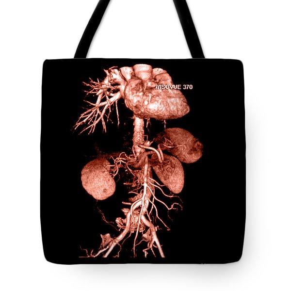 Abdominal Aorta Tote Bag