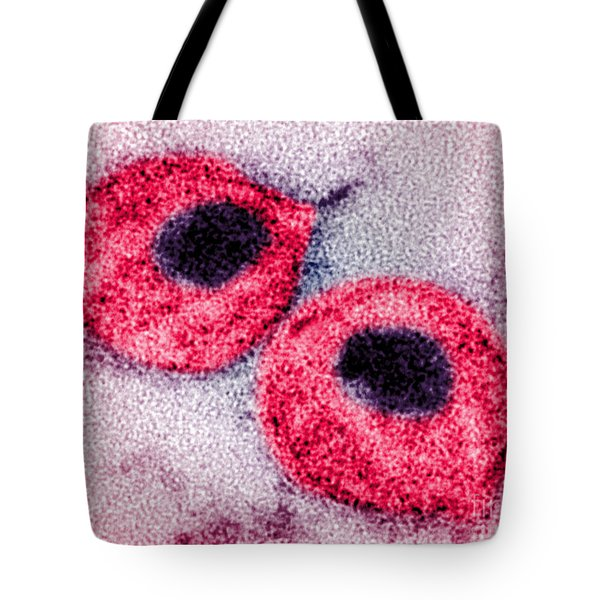 Hiv Tote Bag by Science Source