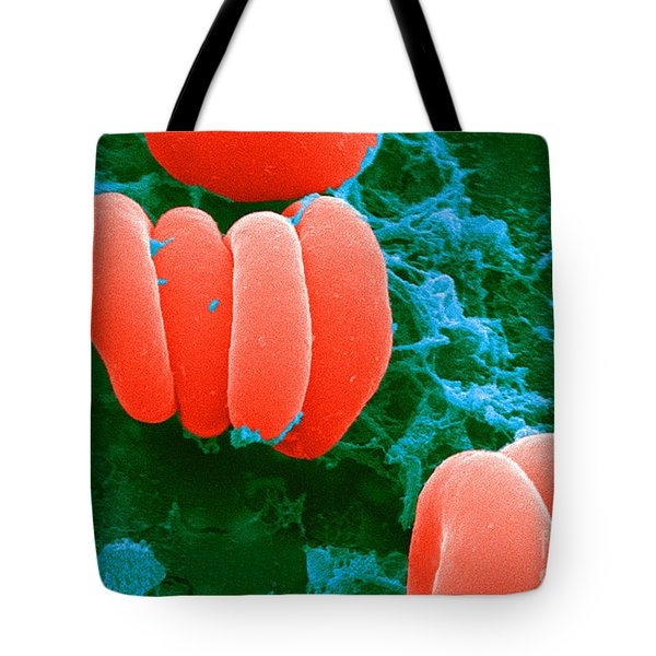 Red Blood Cells, Rouleaux Formation, Sem Tote Bag by Science Source