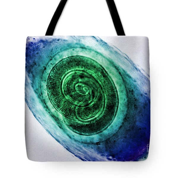 Trichinella In Muscle Lm Tote Bag by Omikron