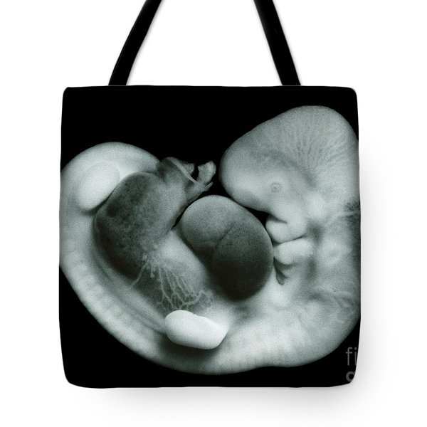 35 Day Old Human Embryo Tote Bag by Omikron