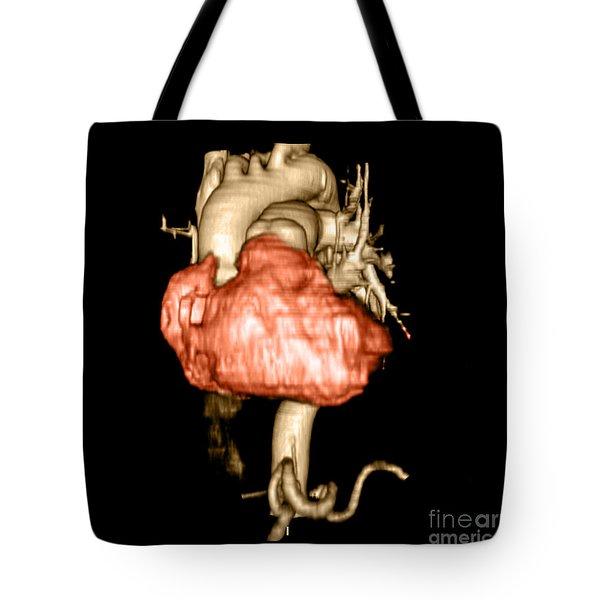 3d Cta Of Heart Tote Bag