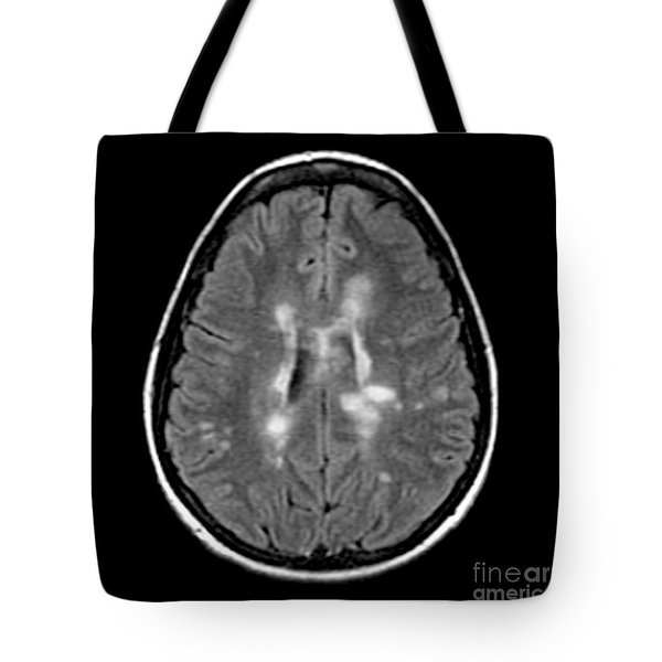 Mri Of Multiple Sclerosis Tote Bag by Medical Body Scans