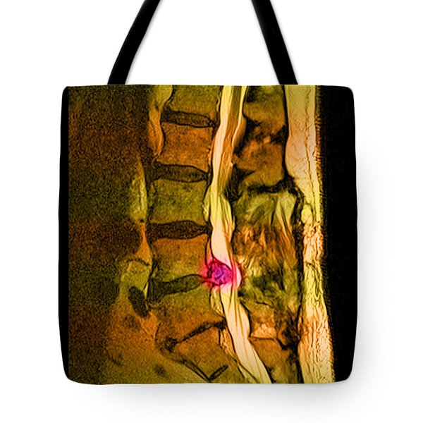 Herniated Disc Tote Bag by Medical Body Scans