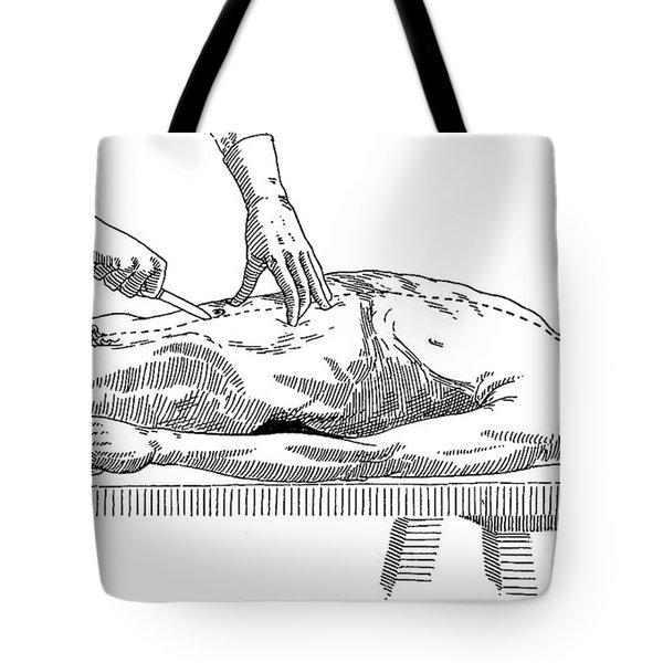 A Handbook Of Morbid Anatomy Tote Bag by Science Source