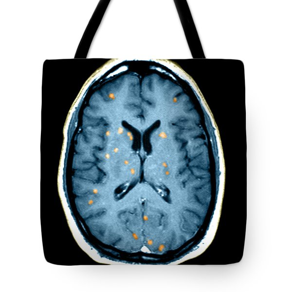 Abnormal Mri Of Brain Tote Bag