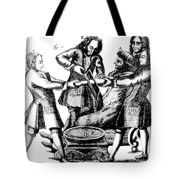 Amputation 1719 Tote Bag by Science Source
