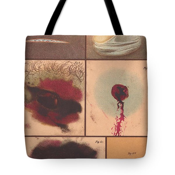 Bloodstain, Blisters, Bullet Holes, 1864 Tote Bag by Science Source