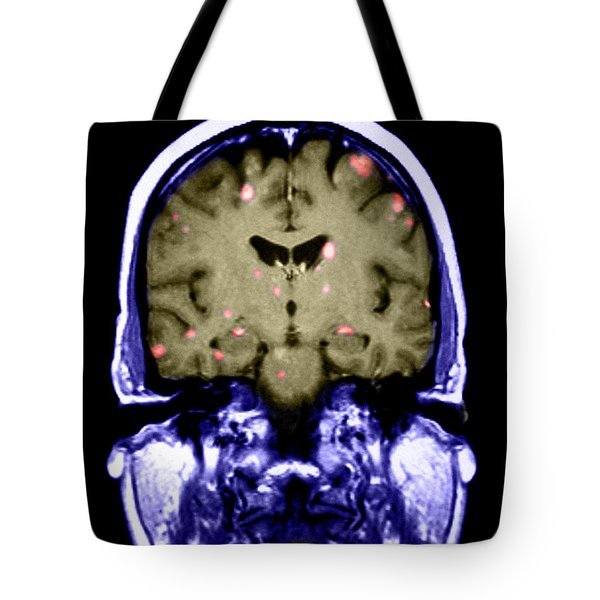 Brain Metastasis From Breast Cancer Tote Bag
