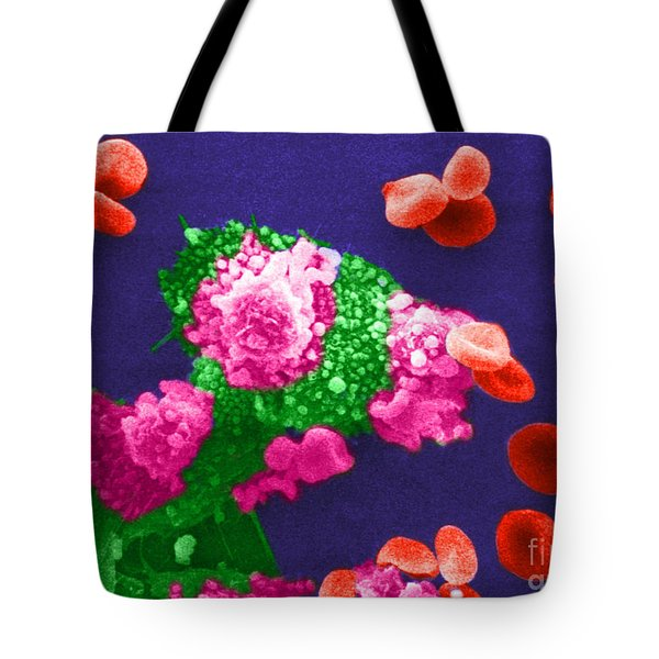 Cancer Cell Death, Sem 3 Of 6 Tote Bag by Science Source