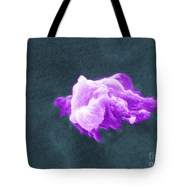 Cancer Cell Death, Sem 6 Of 6 Tote Bag by Science Source
