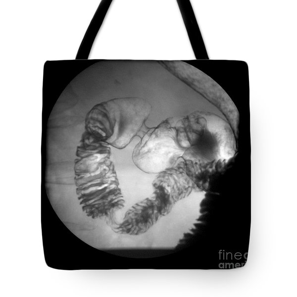 Distal Stomach And Duodenum Tote Bag