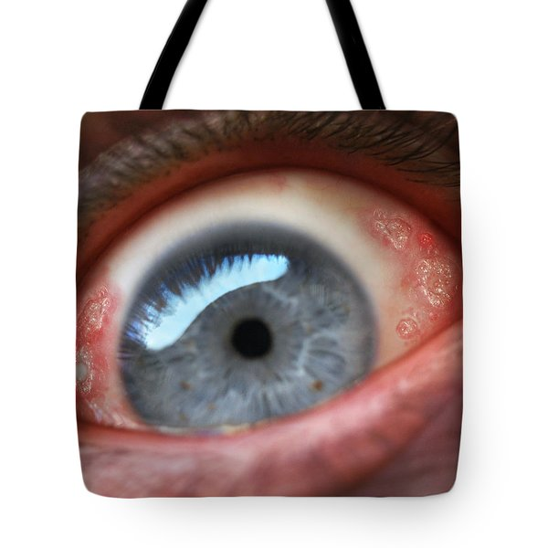 Eyesore Tote Bag by Baron Dixon