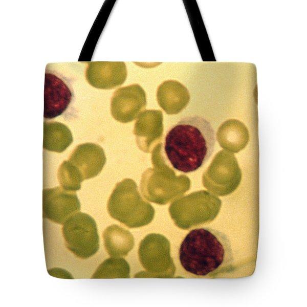 Hairy Cell Leukemia Tote Bag
