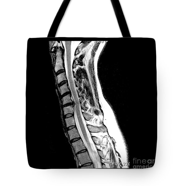 Herniated Disc In Cervical Spine Tote Bag