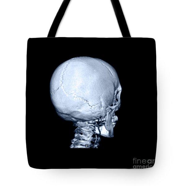 Human Skull Tote Bag