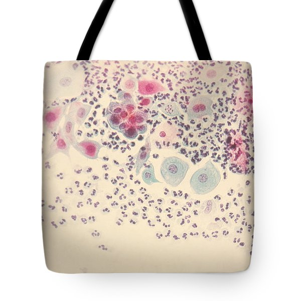 Normal Stellate Cells Tote Bag by Science Source