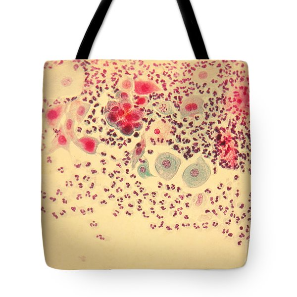 Pap Smear Tote Bag by AFIP / Science Source