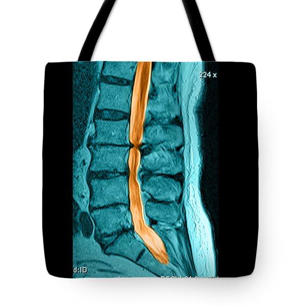 Severe Spinal Stenosis Tote Bag