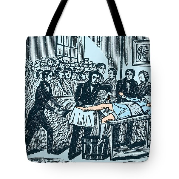Surgery Without Anesthesia, Pre-1840s Tote Bag by Science Source