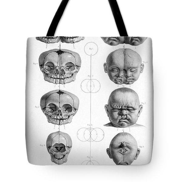 Surgical Anatomy 1856 Tote Bag by Science Source