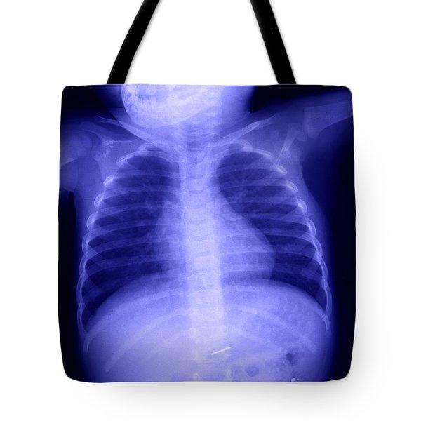 Swallowed Nail Tote Bag by Ted Kinsman