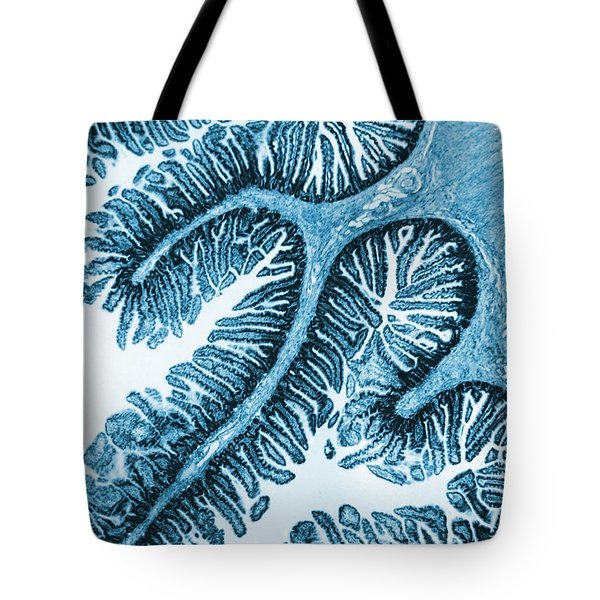 Tem Of Intestines Villi Tote Bag by Science Source