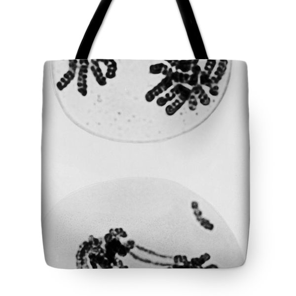 Tem Of Radiation Damage To Chromosomes Tote Bag by Omikron