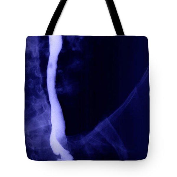 Vena Cava Tote Bag by Ted Kinsman