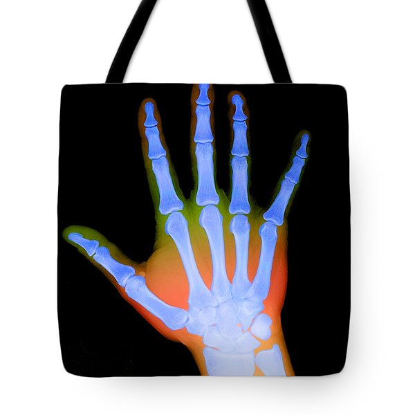 X-ray Of A Hand Tote Bag