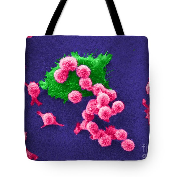 Cancer Cell Death, Sem 2 Of 6 Tote Bag by Science Source