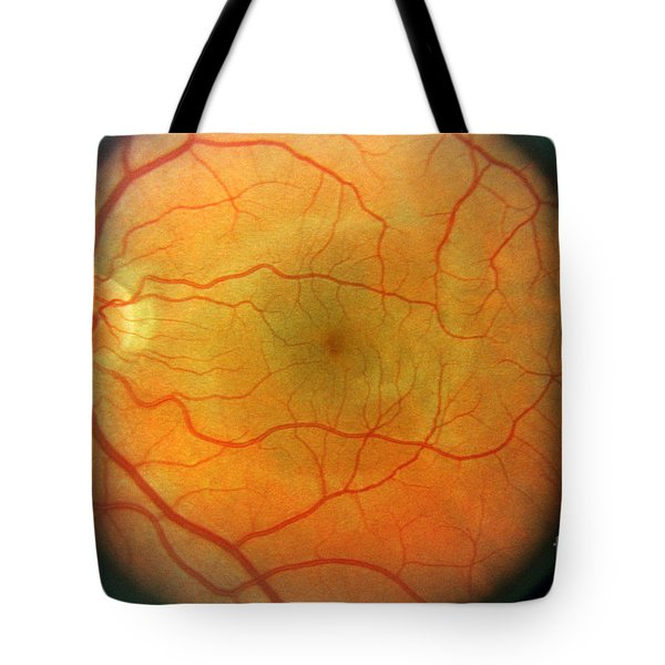 Normal Retina Tote Bag by Science Source