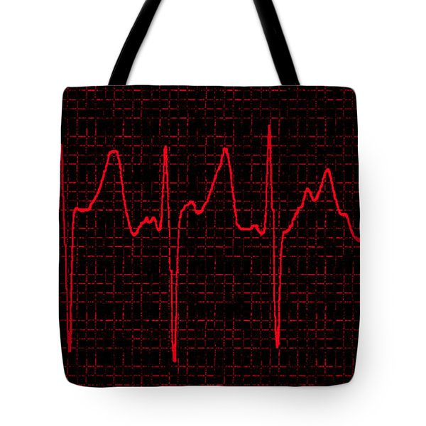 Atrial Fibrillation Tote Bag by Science Source