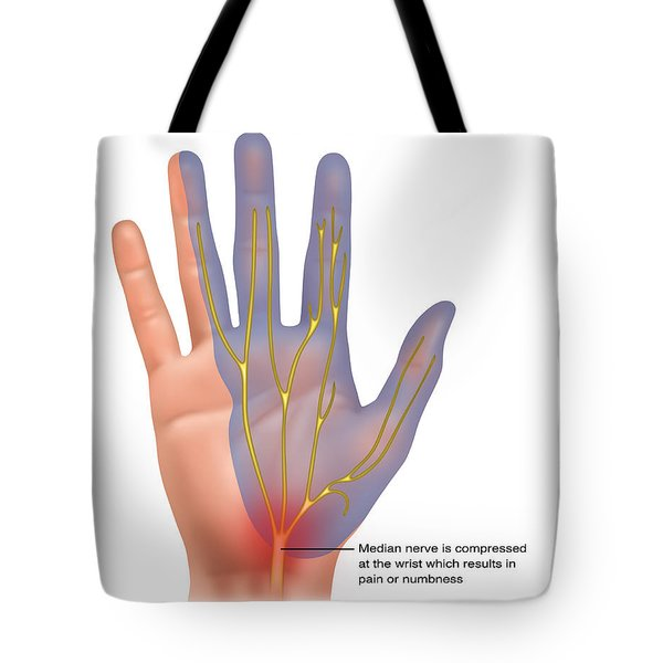 Carpal Tunnel Syndrome, Illustration Tote Bag