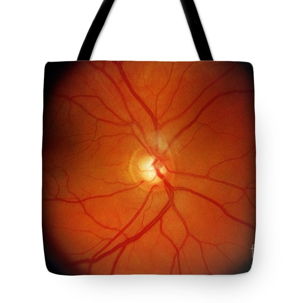 Glaucoma Tote Bag by Science Source