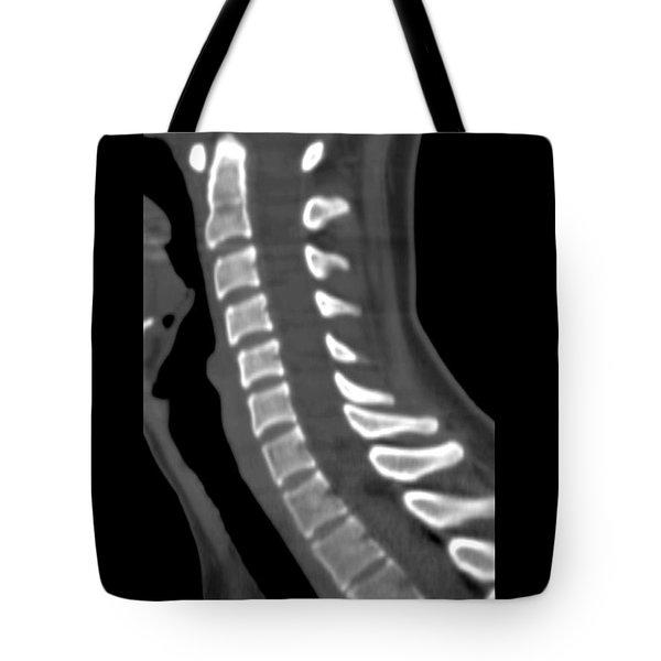 Normal Cervical Spine Tote Bag