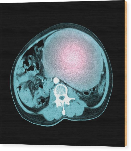 Abdominal Sarcoma Wood Print by Du Cane Medical Imaging Ltd/science Photo Library